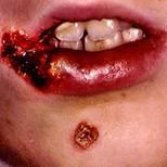 mrsa infection on lips.jpg