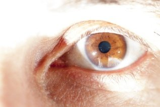 Cataracts, Glaucoma and Colloidal Silver