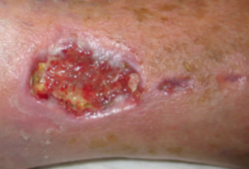 C:UsersBarwickDesktopNew CSS Ezine projectsREADY TO POSTWound Healing -- lady with venous ulcer on anklePhoto 2 non healing dog bite.png