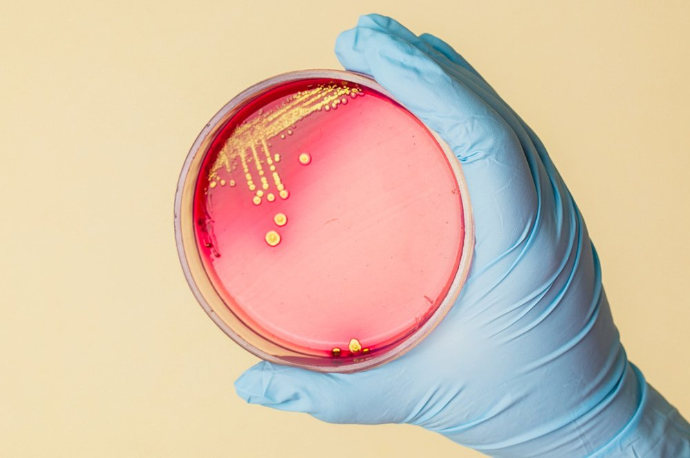 Hand holds Petri dish with Staphylococcus bacteria – Colloidal Silver Heals Staph Infections…Including MRSA!